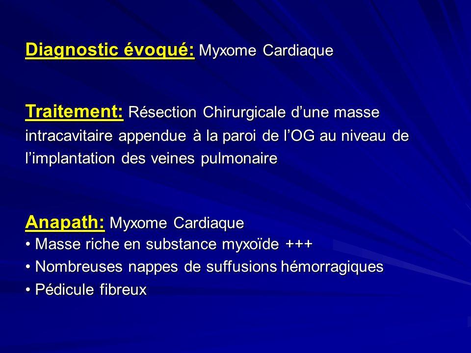 Diagnostic évoqué: Myxome Cardiaque
