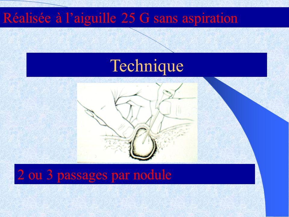 Technique Réalisée à l'aiguille 25 G sans aspiration