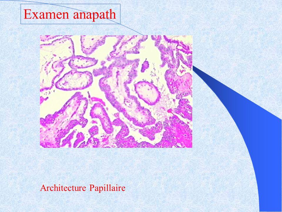 Examen anapath Architecture Papillaire