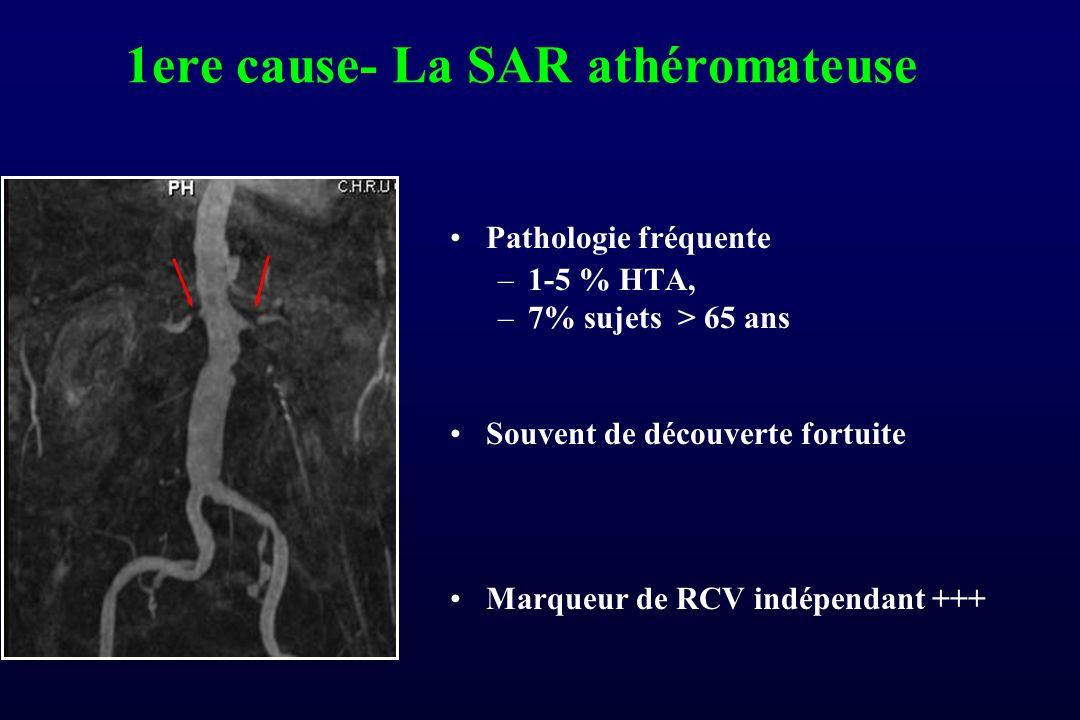 1ere cause- La SAR athéromateuse