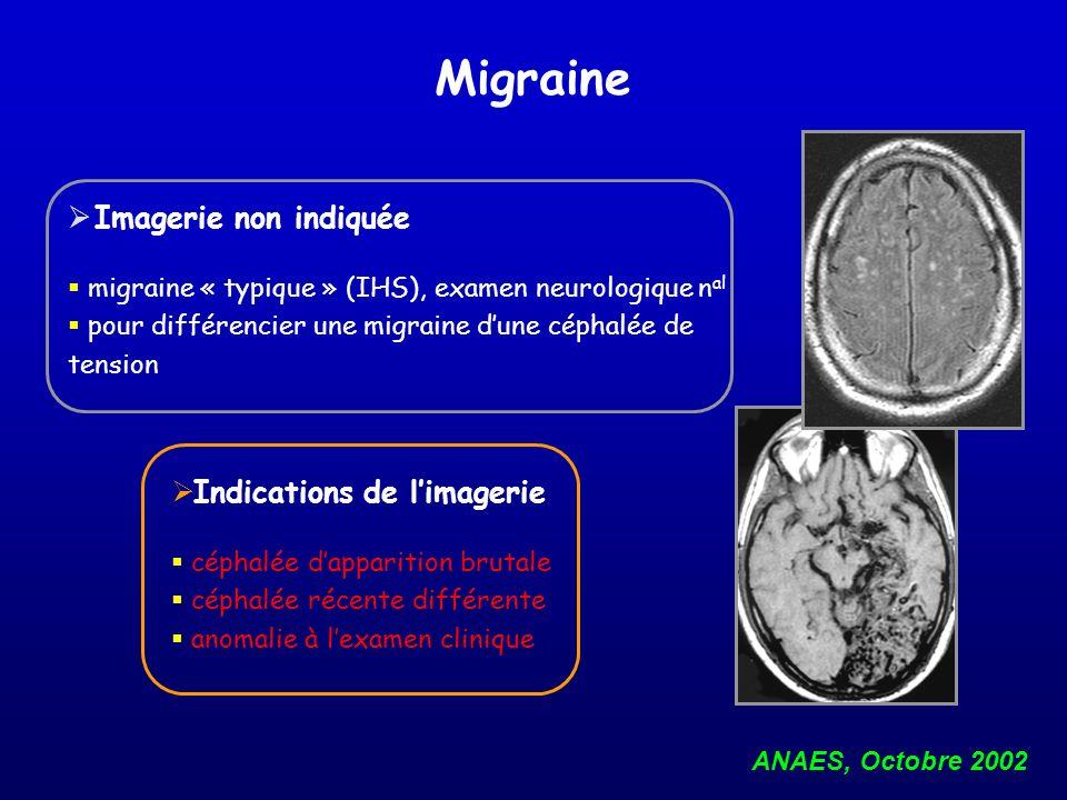 Migraine Imagerie non indiquée Indications de l'imagerie