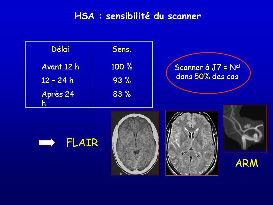 HSA : sensibilité du scanner