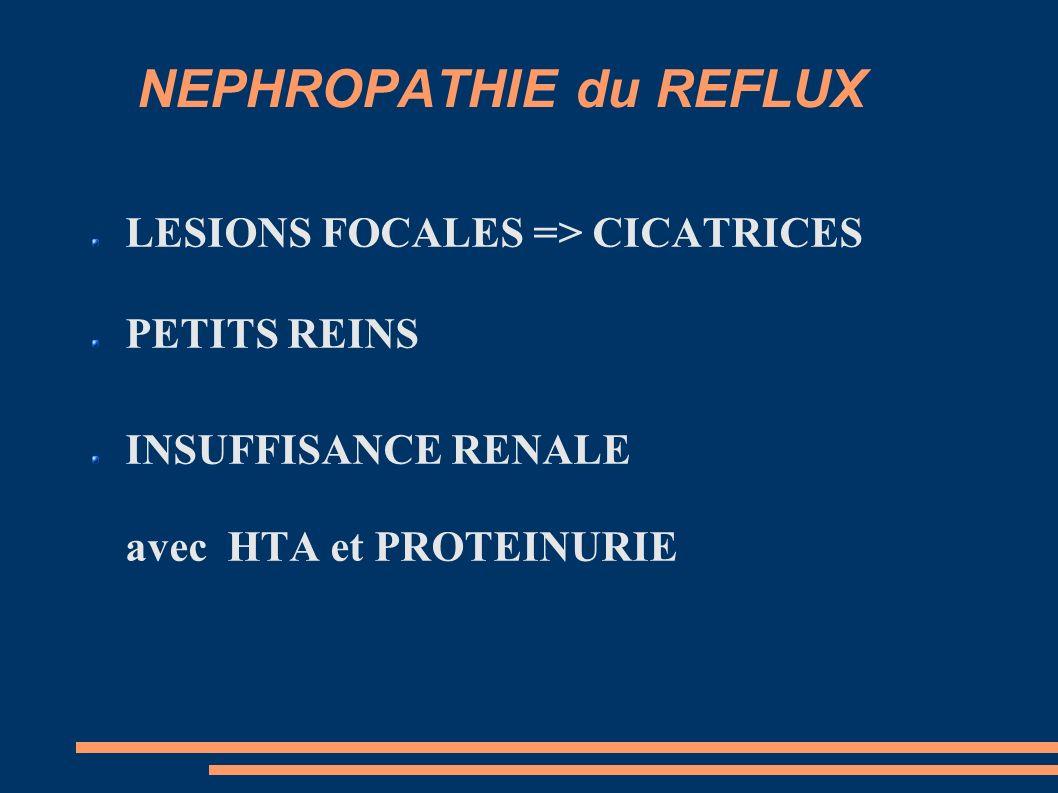 NEPHROPATHIE du REFLUX