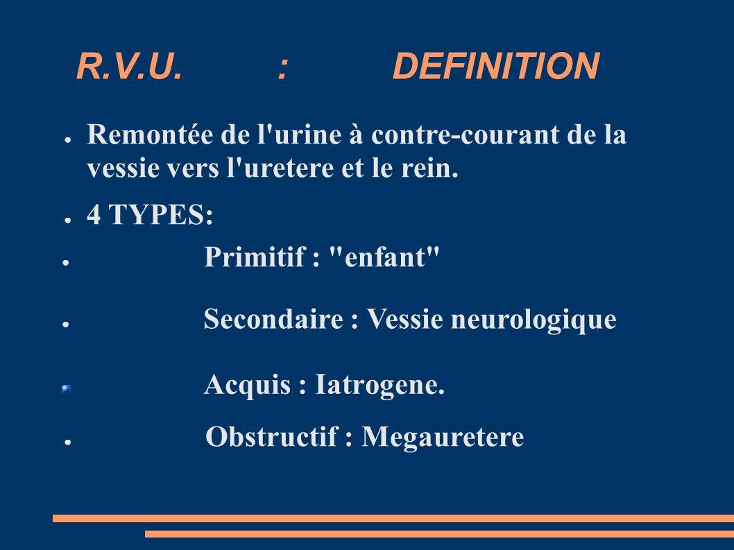 R.V.U. : DEFINITION Remontée de l urine à contre-courant de la vessie vers l uretere et le rein.