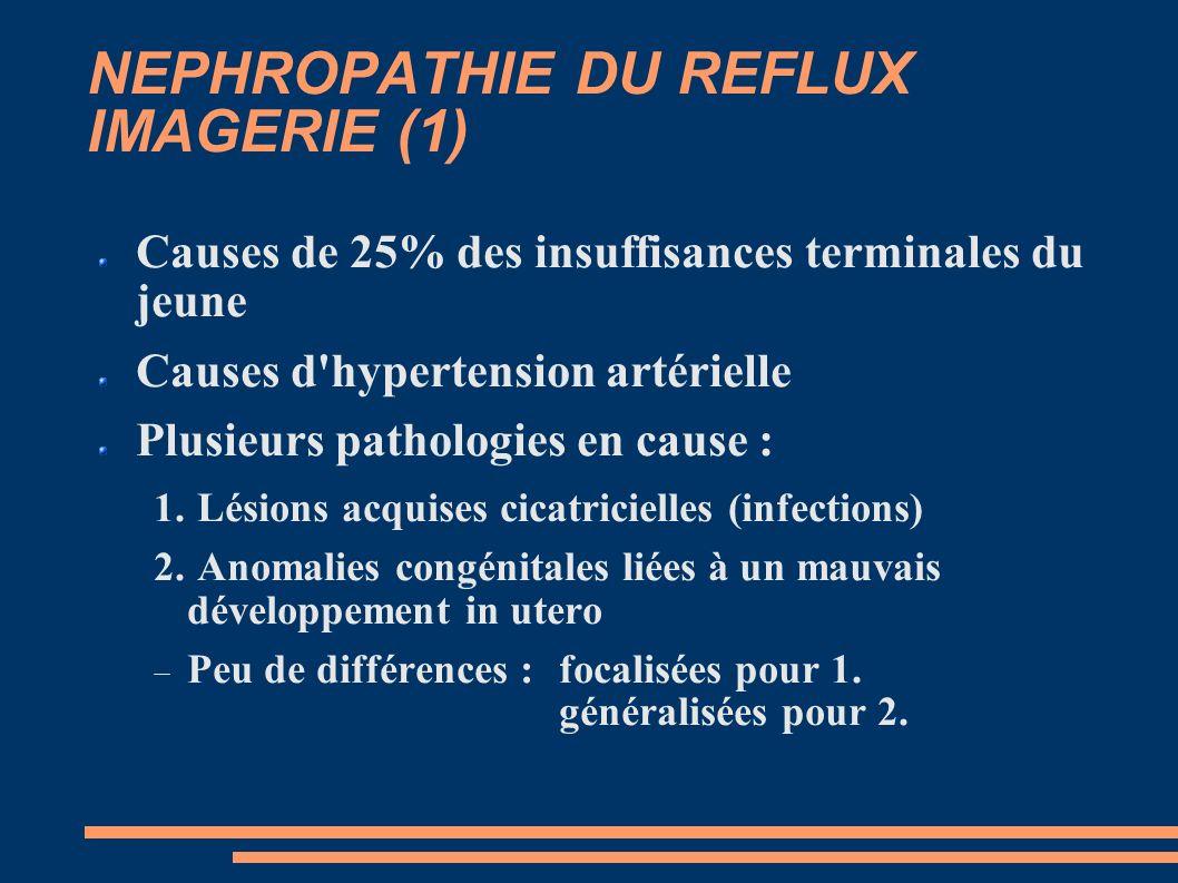 NEPHROPATHIE DU REFLUX IMAGERIE (1)