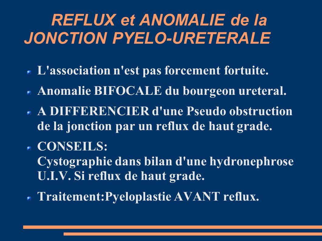 REFLUX et ANOMALIE de la JONCTION PYELO-URETERALE