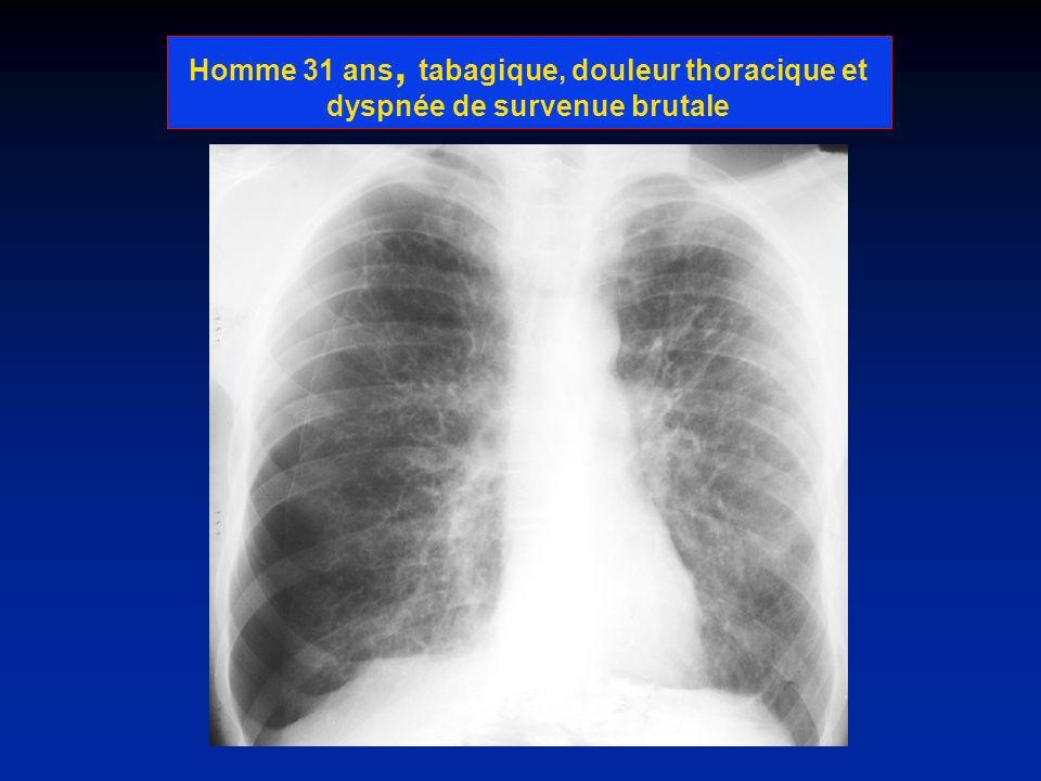 Homme 31 ans, tabagique, douleur thoracique et dyspnée de survenue brutale