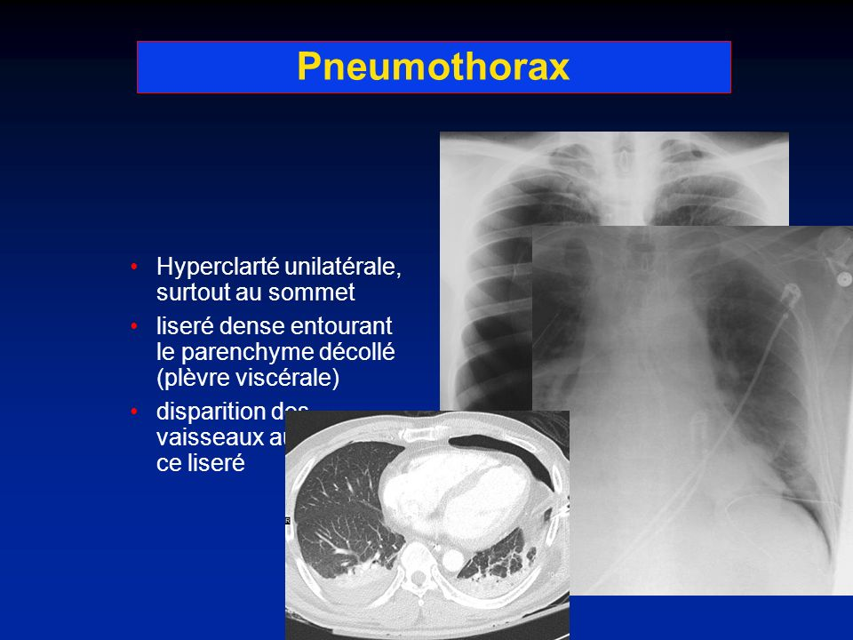 Pneumothorax Hyperclarté unilatérale, surtout au sommet