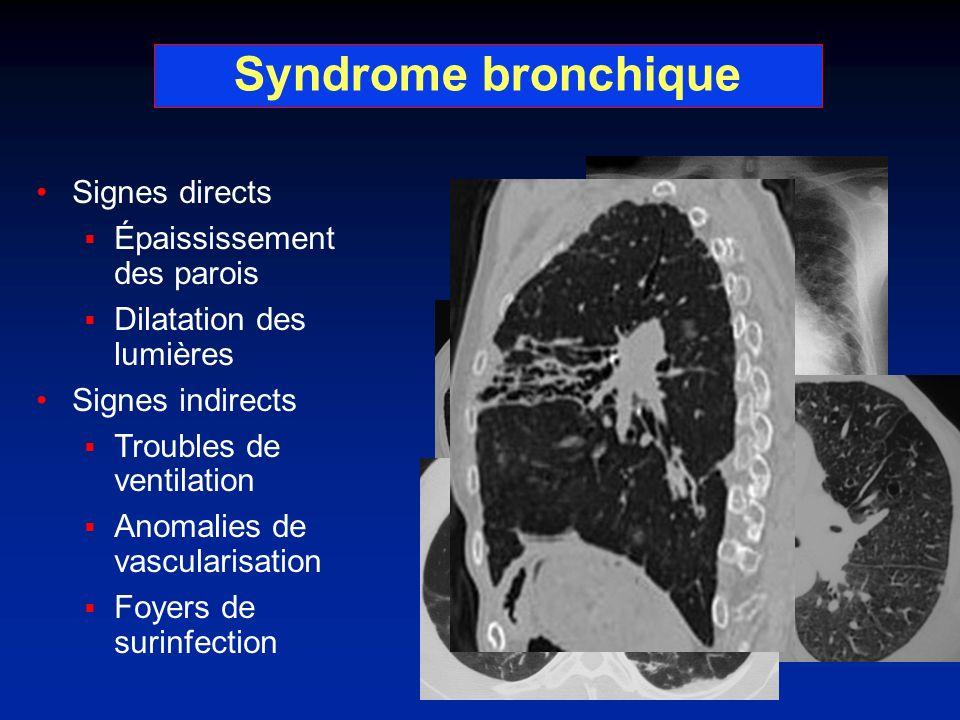 Syndrome bronchique Signes directs Épaississement des parois