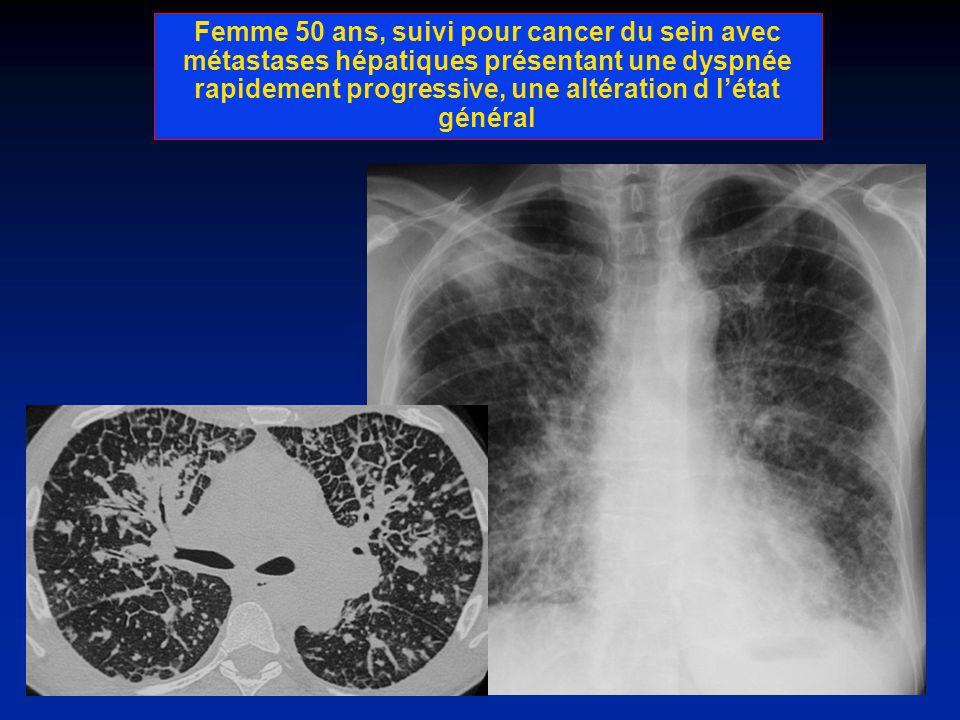 Femme 50 ans, suivi pour cancer du sein avec métastases hépatiques présentant une dyspnée rapidement progressive, une altération d l'état général