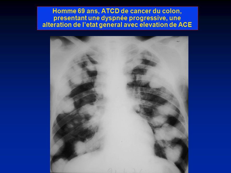 Homme 69 ans, ATCD de cancer du colon, presentant une dyspnée progressive, une alteration de l'etat general avec elevation de ACE