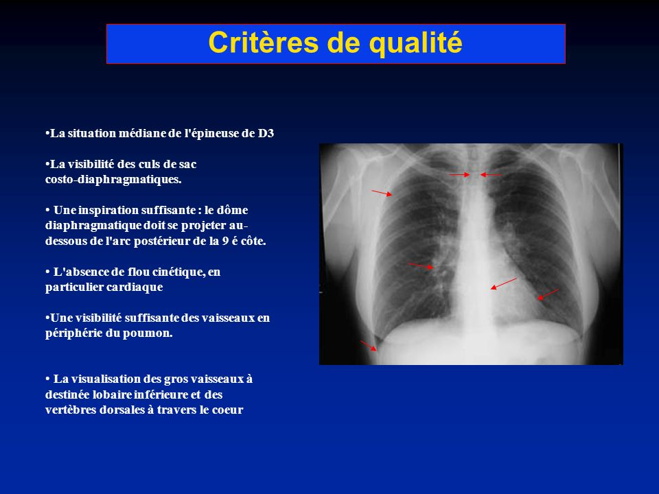 Critères de qualité La situation médiane de l épineuse de D3