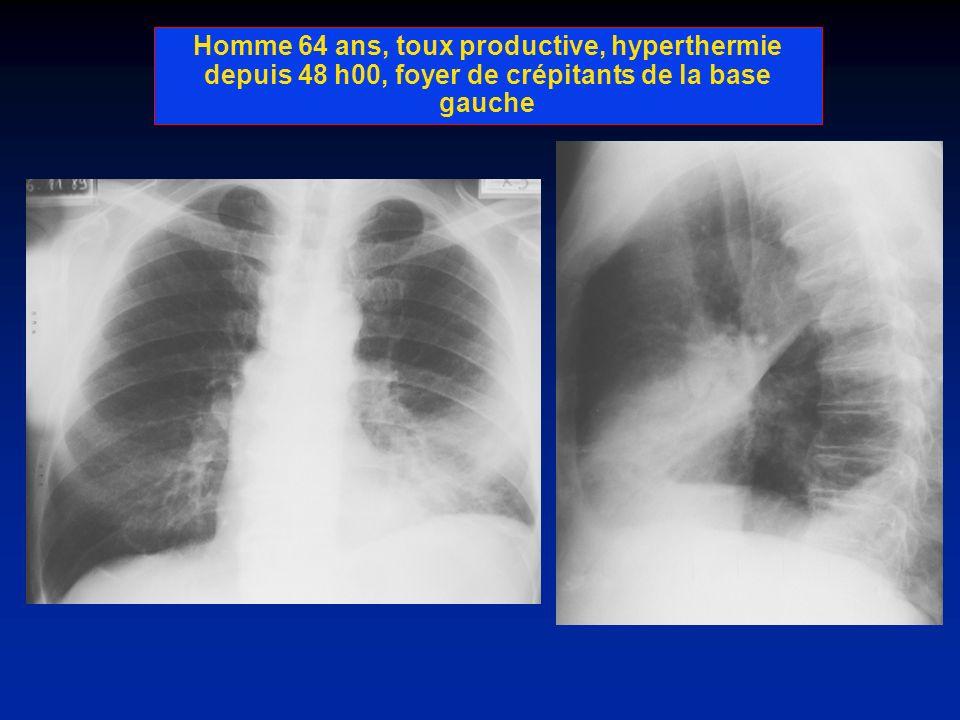 Homme 64 ans, toux productive, hyperthermie depuis 48 h00, foyer de crépitants de la base gauche