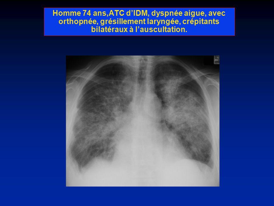 Homme 74 ans,ATC d'IDM, dyspnée aigue, avec orthopnée, grésillement laryngée, crépitants bilatéraux à l'auscultation.