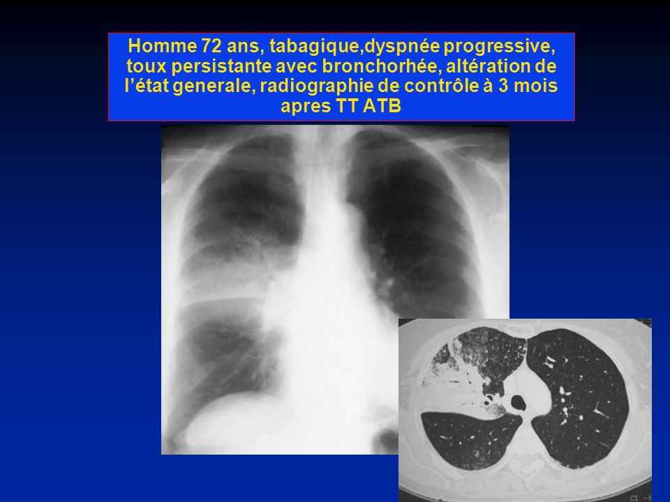 Homme 72 ans, tabagique,dyspnée progressive, toux persistante avec bronchorhée, altération de l'état generale, radiographie de contrôle à 3 mois apres TT ATB