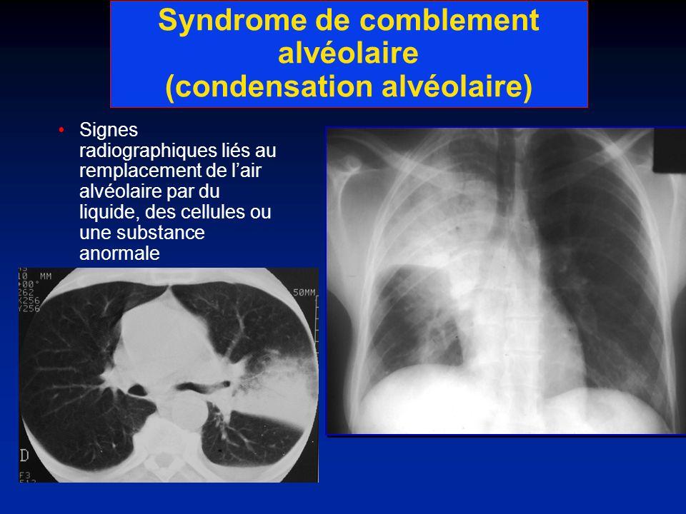 Syndrome de comblement alvéolaire (condensation alvéolaire)
