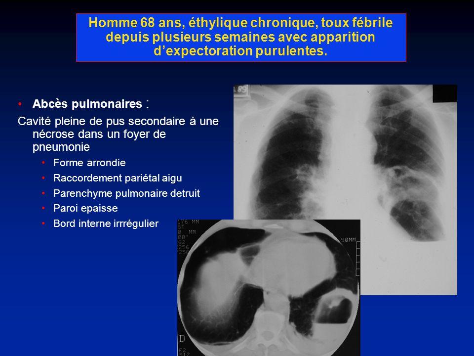Homme 68 ans, éthylique chronique, toux fébrile depuis plusieurs semaines avec apparition d'expectoration purulentes.