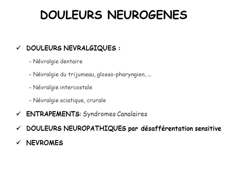 DOULEURS NEUROGENES  DOULEURS NEVRALGIQUES :