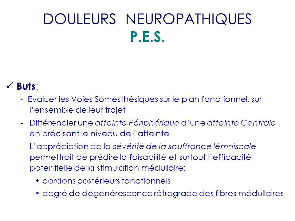 DOULEURS NEUROPATHIQUES P.E.S.