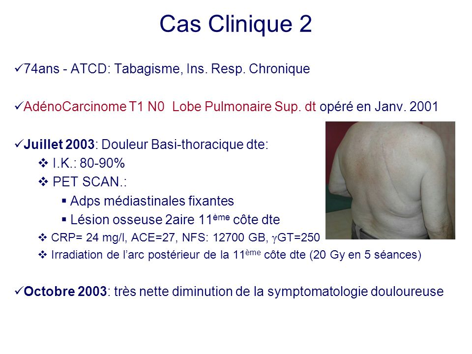Cas Clinique 2 74ans - ATCD: Tabagisme, Ins. Resp. Chronique