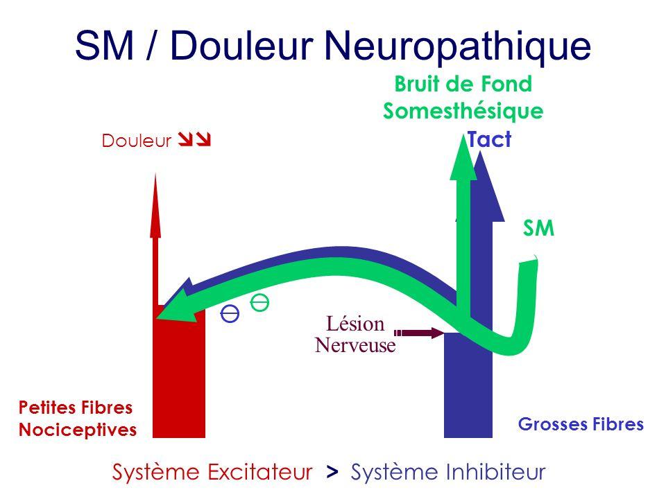 SM / Douleur Neuropathique