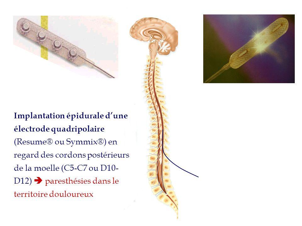 Implantation épidurale d'une électrode quadripolaire (Resume® ou Symmix®) en regard des cordons postérieurs de la moelle (C5-C7 ou D10-D12)  paresthésies dans le territoire douloureux