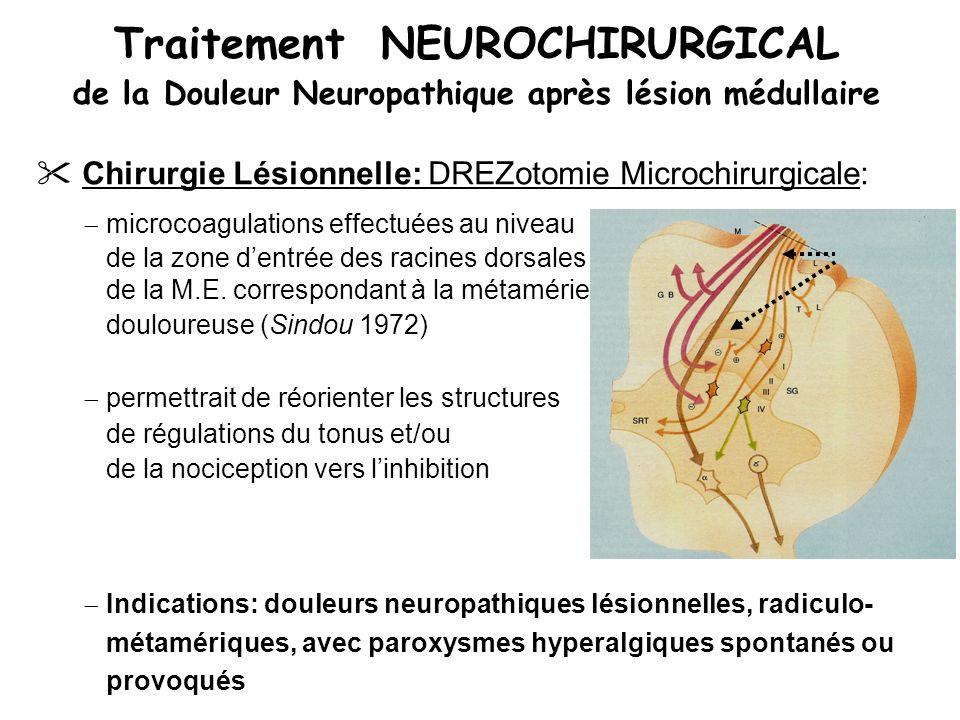 Traitement NEUROCHIRURGICAL de la Douleur Neuropathique après lésion médullaire