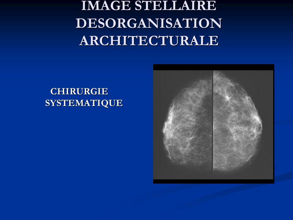 IMAGE STELLAIRE DESORGANISATION ARCHITECTURALE