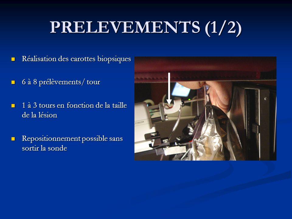 PRELEVEMENTS (1/2) Réalisation des carottes biopsiques