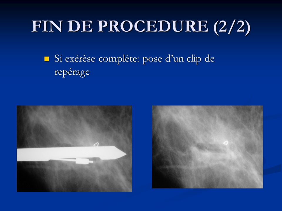 FIN DE PROCEDURE (2/2) Si exérèse complète: pose d'un clip de repérage