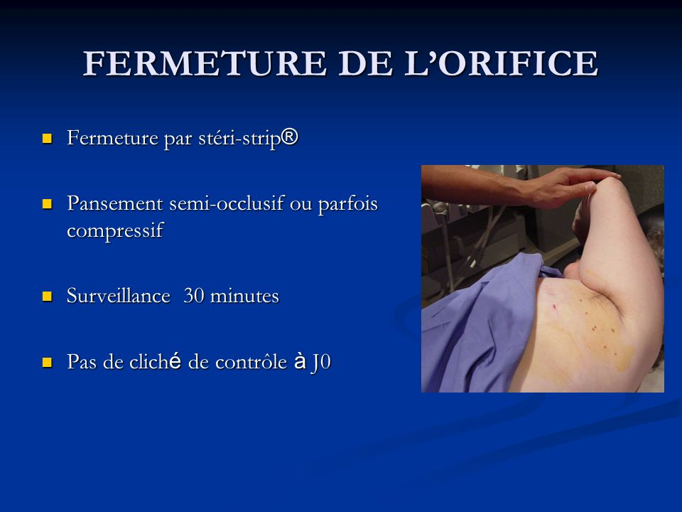 FERMETURE DE L'ORIFICE