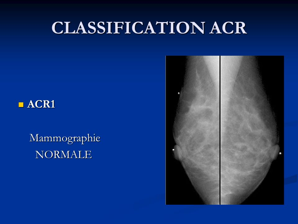 CLASSIFICATION ACR ACR1 Mammographie NORMALE