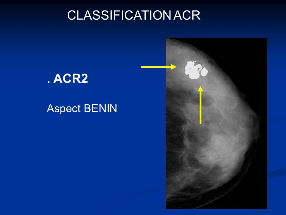 CLASSIFICATION ACR . ACR2 Aspect BENIN
