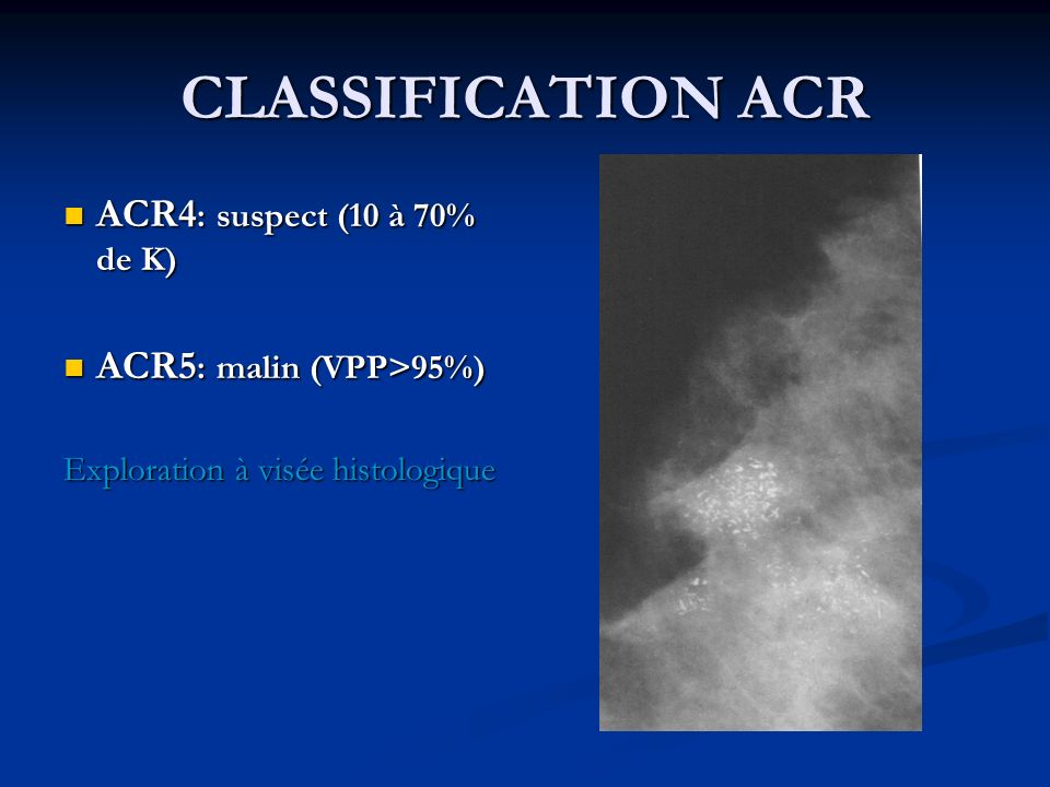 CLASSIFICATION ACR ACR4: suspect (10 à 70% de K)
