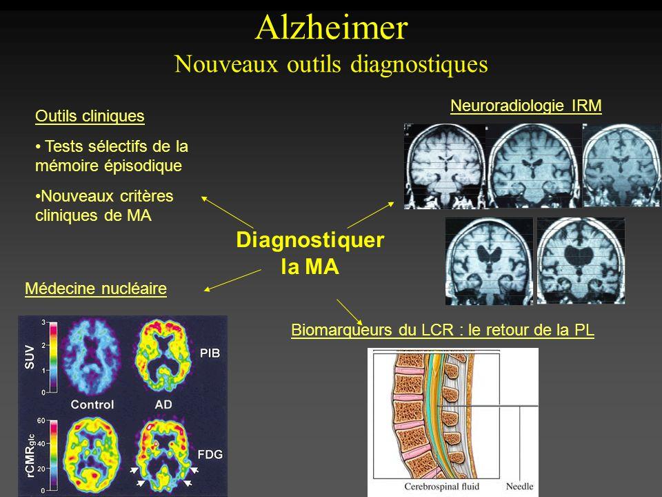 Alzheimer Nouveaux outils diagnostiques
