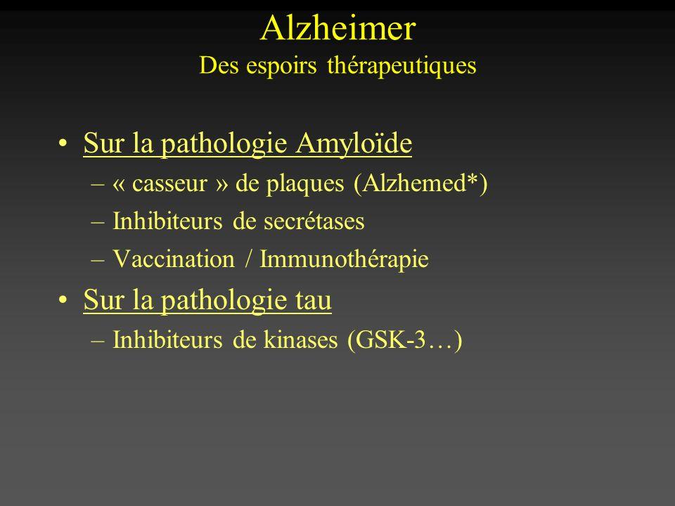 Alzheimer Des espoirs thérapeutiques