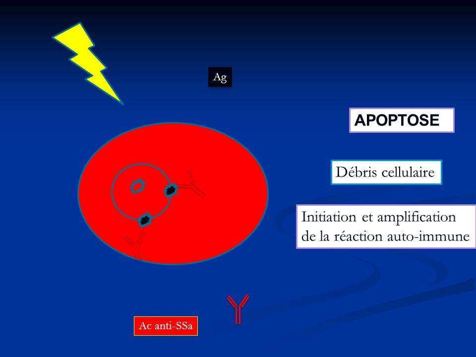 Initiation et amplification de la réaction auto-immune