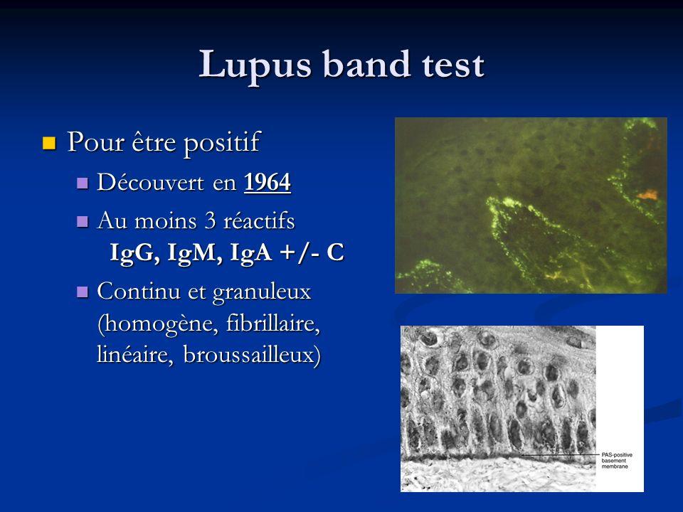 Lupus band test Pour être positif Découvert en 1964