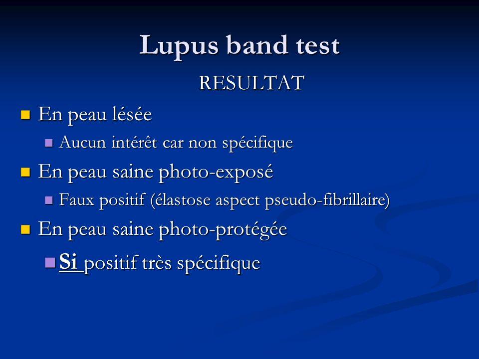 Lupus band test Si positif très spécifique RESULTAT En peau lésée