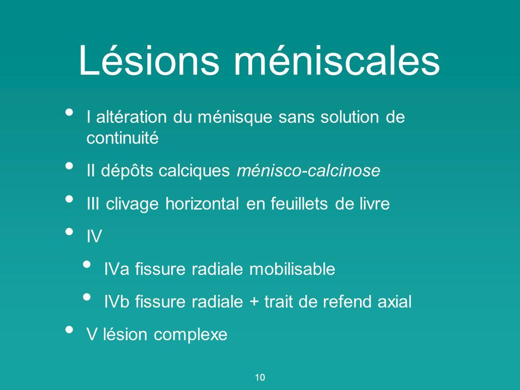 Lésions méniscales I altération du ménisque sans solution de continuité. II dépôts calciques ménisco-calcinose.