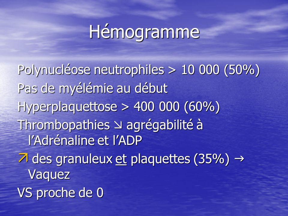 Hémogramme Polynucléose neutrophiles > 10 000 (50%)