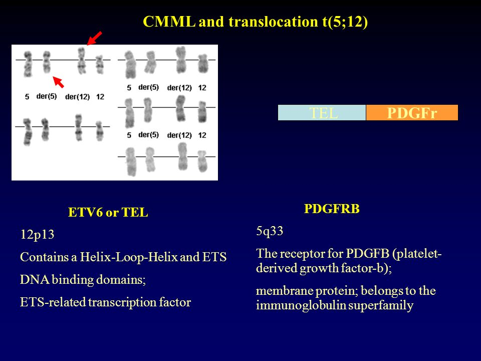 CMML and translocation t(5;12)