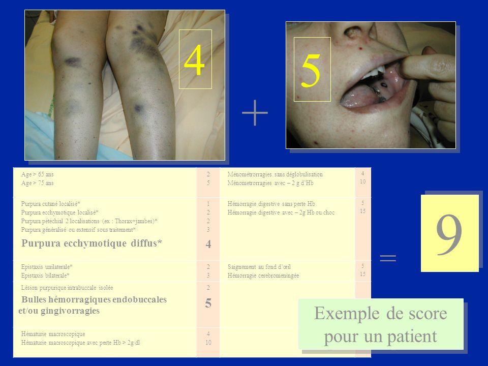 Exemple de score pour un patient