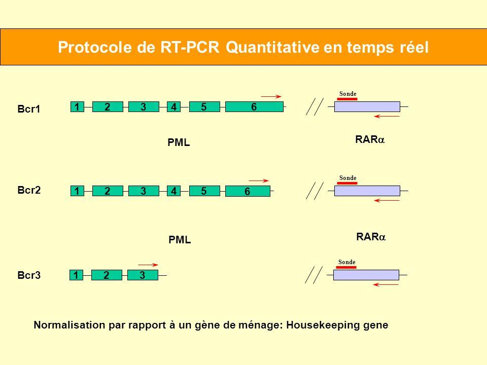 Protocole de RT-PCR Quantitative en temps réel