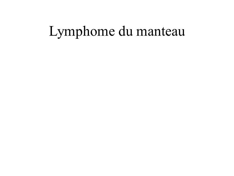 Lymphome du manteau