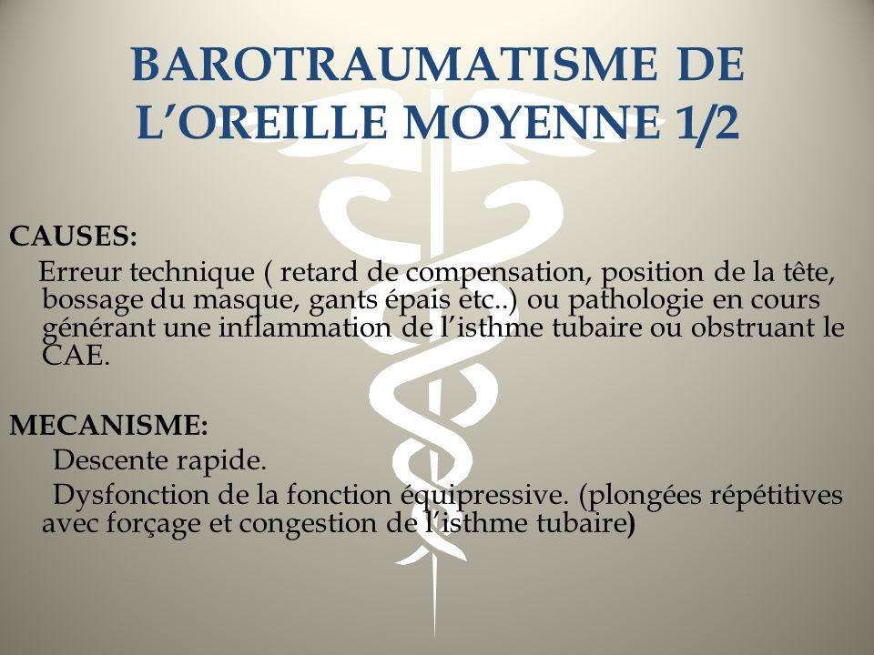 BAROTRAUMATISME DE L'OREILLE MOYENNE 1/2