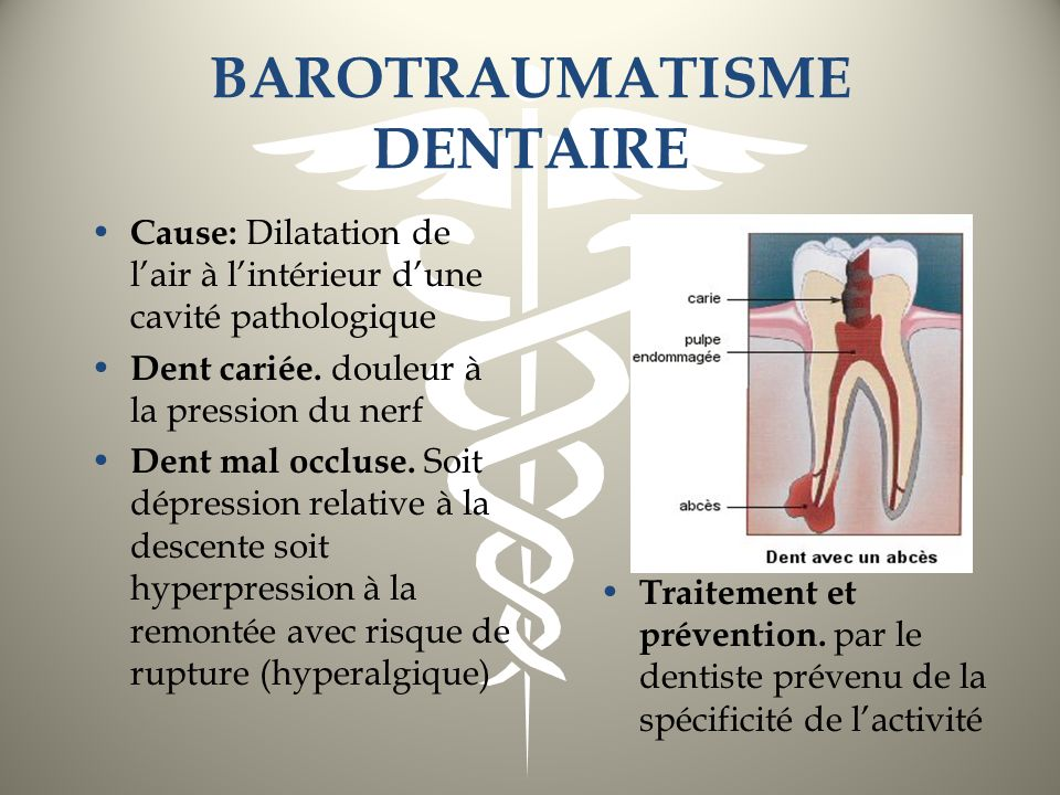 BAROTRAUMATISME DENTAIRE
