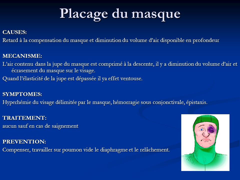 Placage du masque CAUSES: