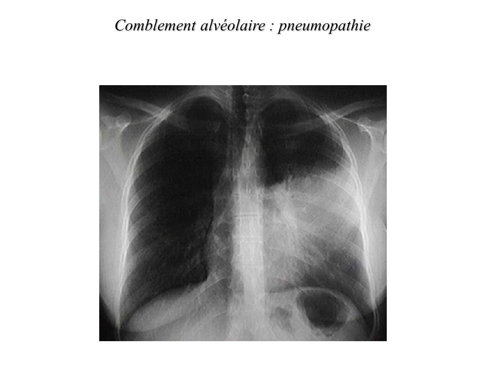 Comblement alvéolaire : pneumopathie