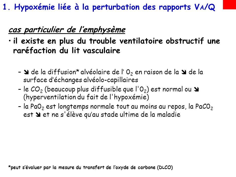 Hypoxémie liée à la perturbation des rapports VA/Q